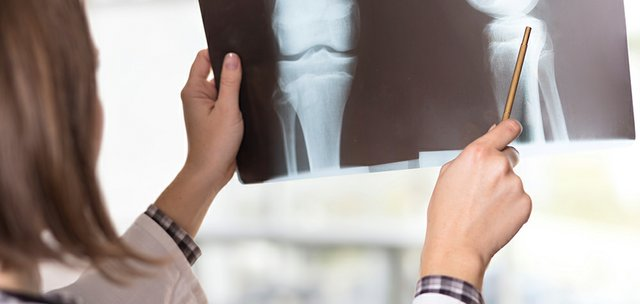 The Importance of Bone Health in Advanced Cancer